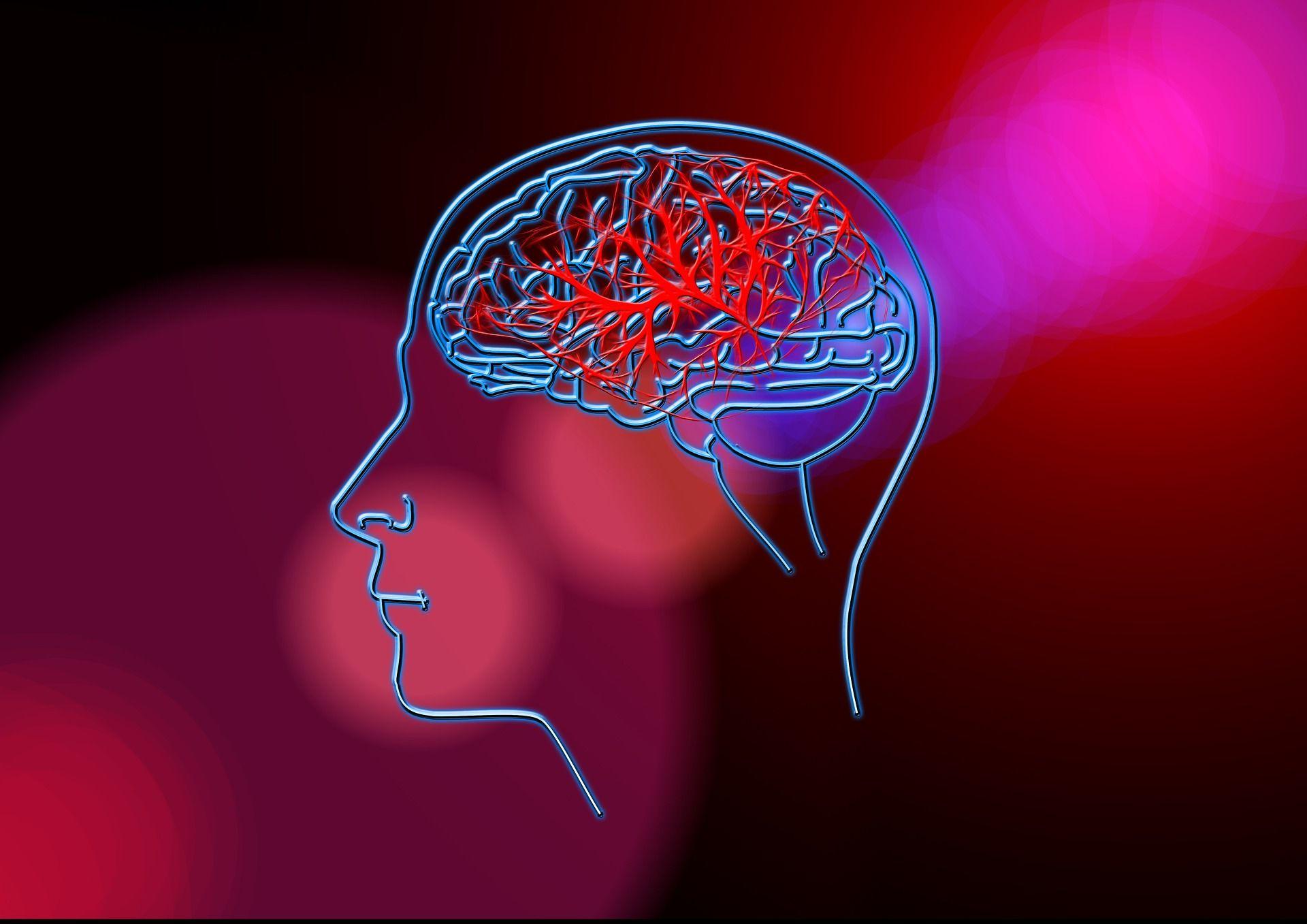 Cómo se puede evitar el ataque cerebrovascular.