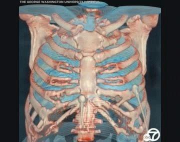 El médico del hospital donde se hizo el estudio dijo que no hay que ser experto para entender esas imágenes.