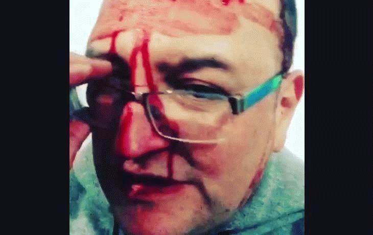 Leo García sufrió un brutal ataque homofóbico por parte de una patota