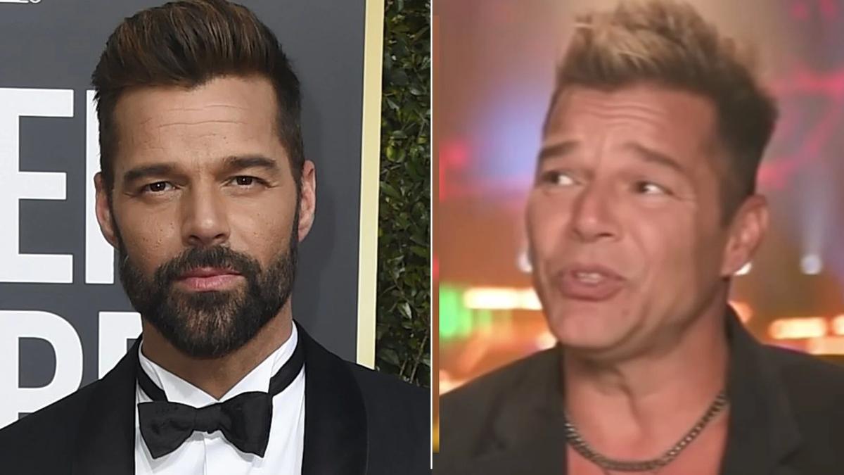 Ricky Martin vuelve a los escenarios y todos hablan de su cara nueva
